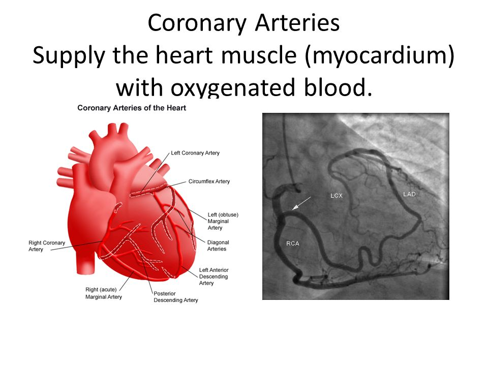 coronary artery disease nursing care plan This nursing care plan for heart cath or cardiac catheterization includes a diagnosis and care plan for nurses with nursing interventions and outcomes for the following conditions:  nursing care plan & diagnosis for heart cath cardiac catheterization  a cardiac cath is performed on patients to rule out coronary artery disease some of.