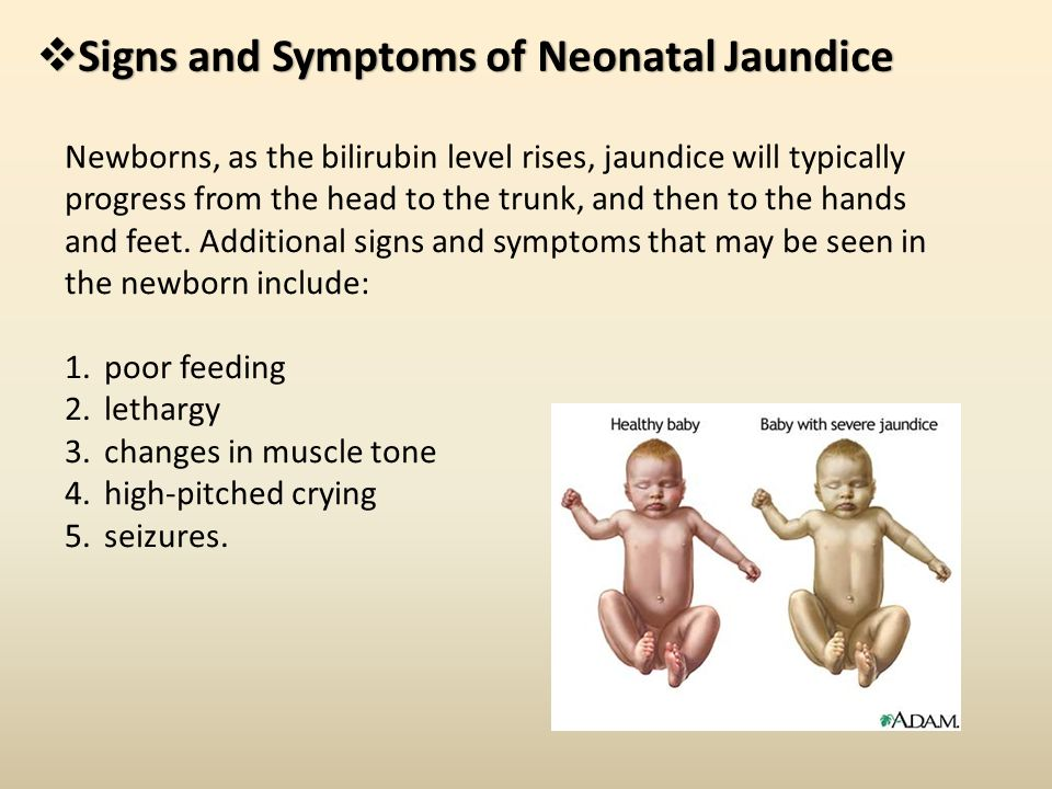 jaundice symptoms The management of obstructive jaundice obstructive jaundice is a particular type of jaundice and occurs when the essential flow of bile to the intestine is blocked.