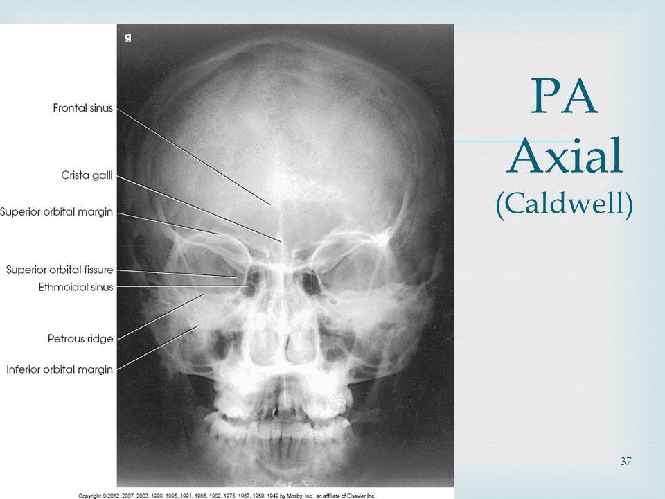 Unique Orbit Anatomy Radiology Embellishment - Anatomy Ideas ...