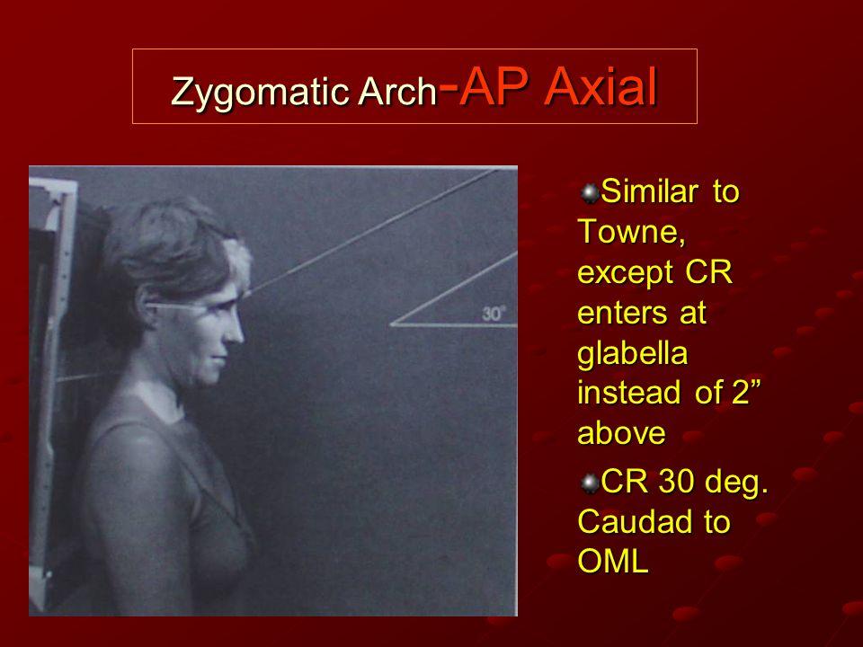 Zygomatic Arch-AP Axial