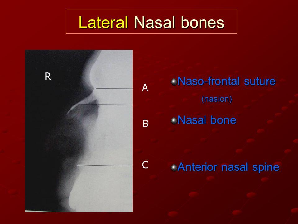 Naso-frontal suture (nasion) Nasal bone Anterior nasal spine