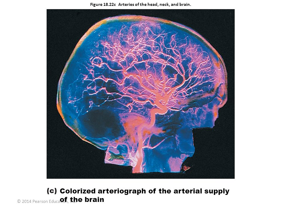 Figure 18.22c Arteries of the head, neck, and brain.