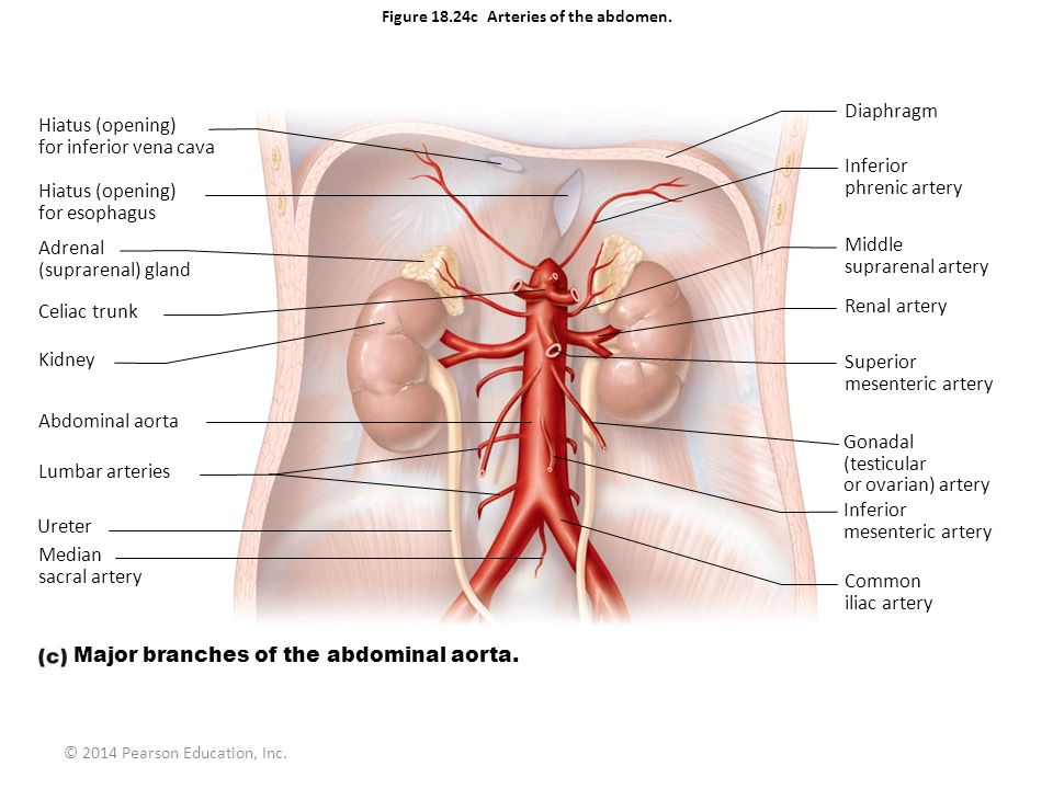 Figure 18.24c Arteries of the abdomen.