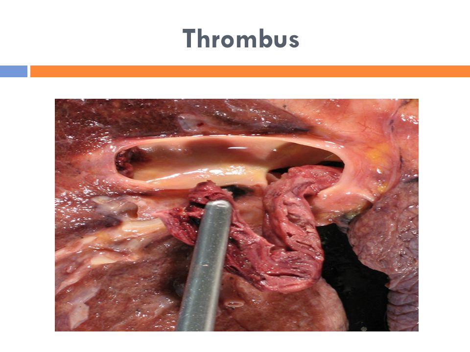 Thrombus related keywords thrombus long tail keywords for Mural thrombi