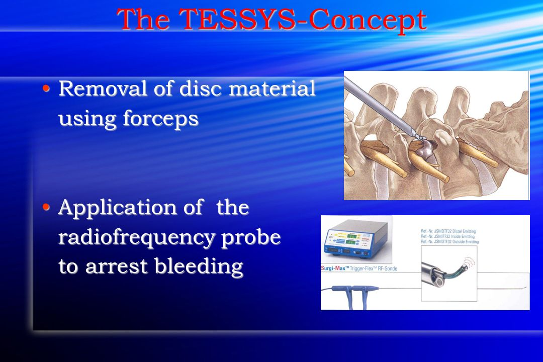 The TESSYS-Concept Removal of disc material using forceps