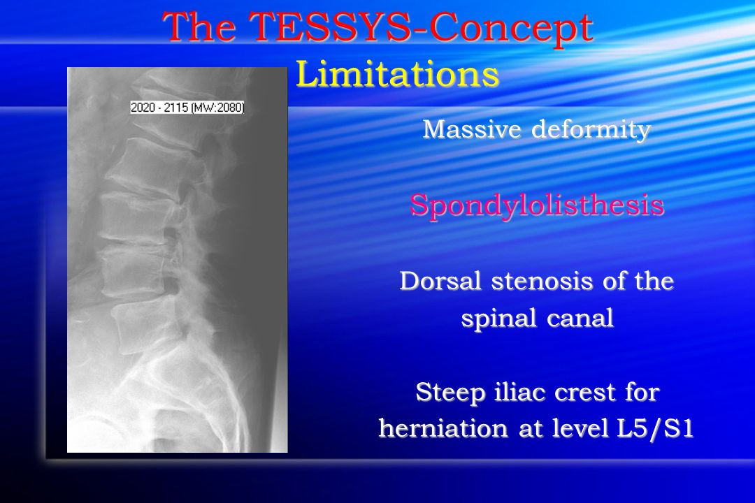 herniation at level L5/S1