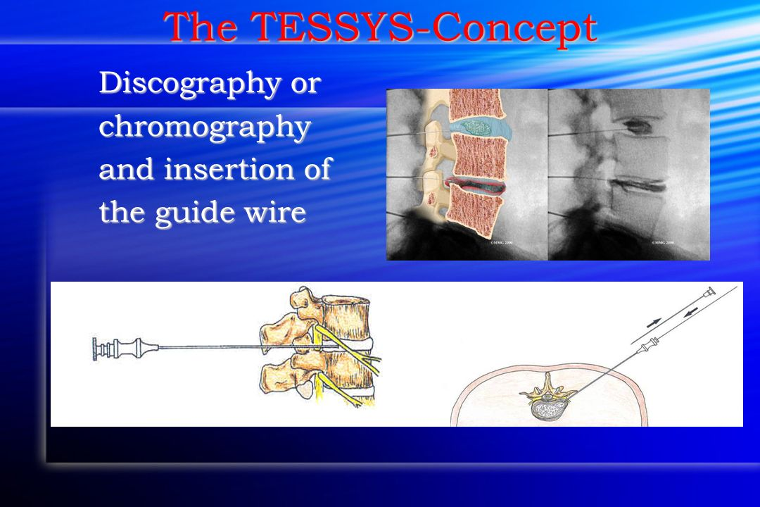 The TESSYS-Concept Discography or chromography and insertion of