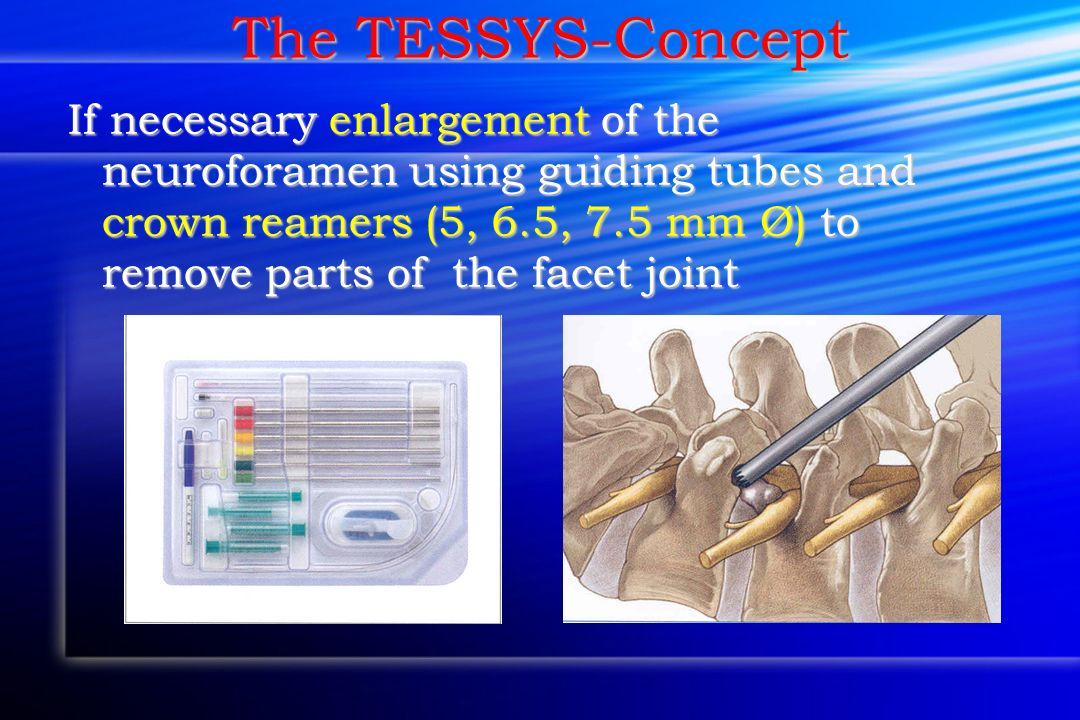 The TESSYS-Concept