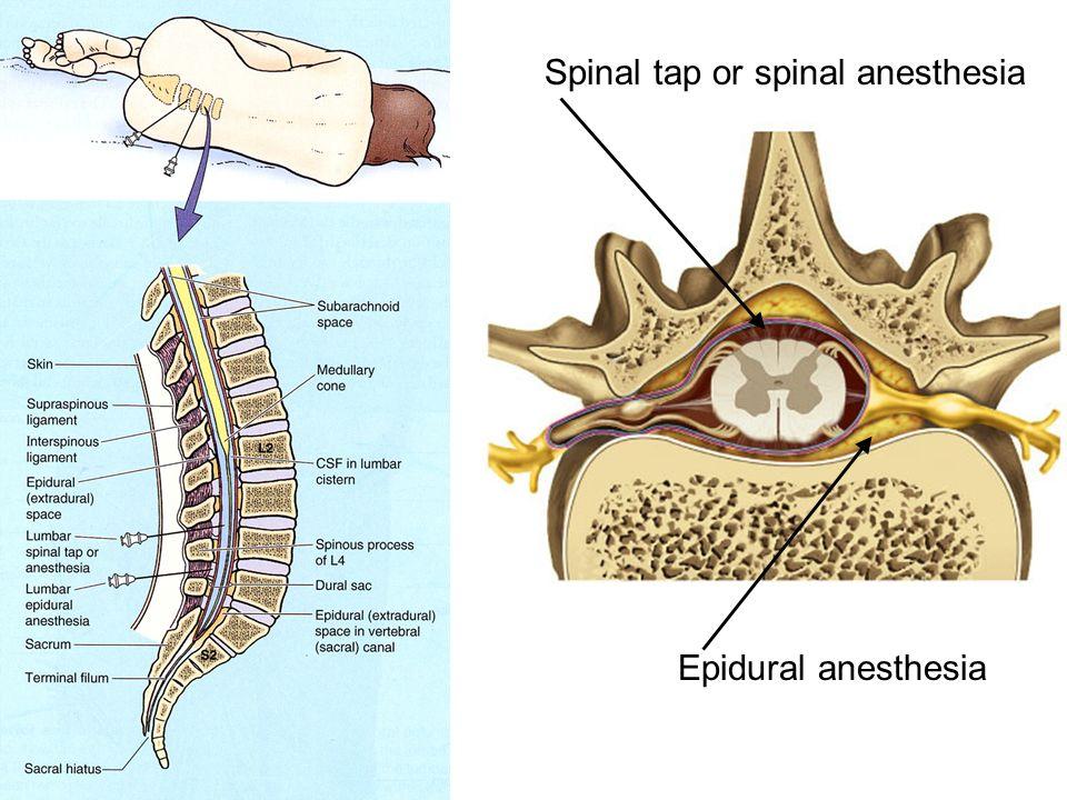 Gemtlich Spinal Tap Anatomy Zeitgenssisch Menschliche Anatomie