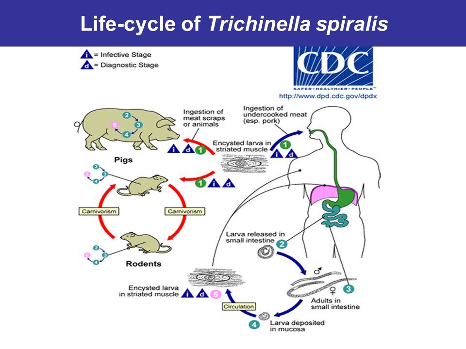 an analysis of the topic of the paraside trichinella Parasite biology and which have been shown to inactivate trichinae for example, trichinella spiralis is affect trichinella spiralis: bioassay analysis.