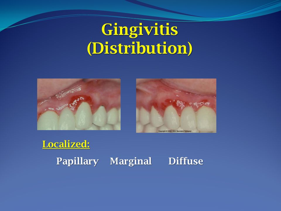 Lecture 7 Clinical Features 0f Gingivitis Presented By