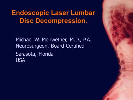 Michael W. Meriwether, M.D., P.A. Neurosurgeon, Board Certified Sarasota, Florida USA Endoscopic Laser Lumbar Disc Decompression.