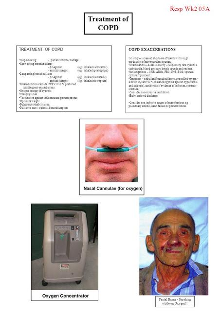 Facial Burns - Smoking while on Oxygen!!