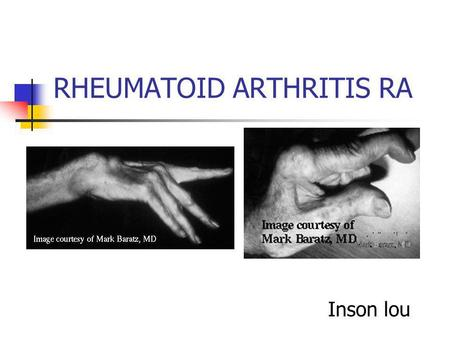 RHEUMATOID ARTHRITIS RA Inson lou. Epidemiology Symptoms signs Labs Diagnosis Treatment.