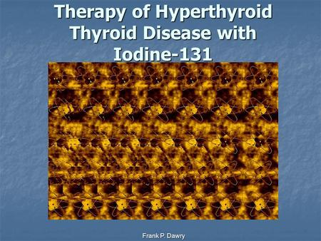 Frank P. Dawry Therapy of Hyperthyroid Thyroid Disease with Iodine-131.