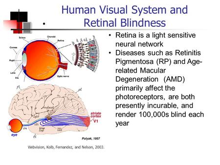 Human Visual System and Retinal Blindness Retina is a light sensitive neural network Diseases such as Retinitis Pigmentosa (RP) and Age- related Macular.