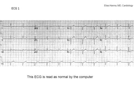 ECG 1 This ECG is read as normal by the computer Elias Hanna, MD, Cardiology.