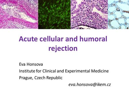 Acute cellular and humoral rejection