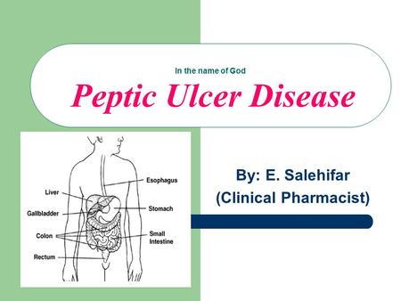 In the name of God Peptic Ulcer Disease