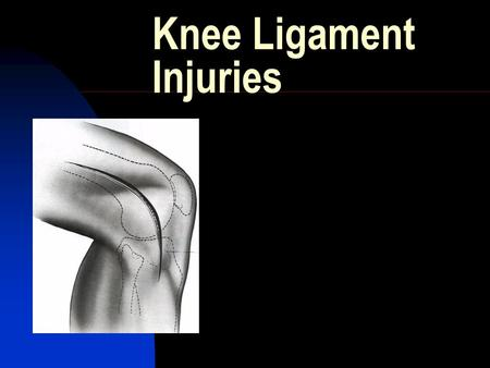 Knee Ligament Injuries. Overview Ligament Anatomy Biomechanics Ligament Specific  Epidemiology  Classification  Clinical exam  Imaging  Tx.