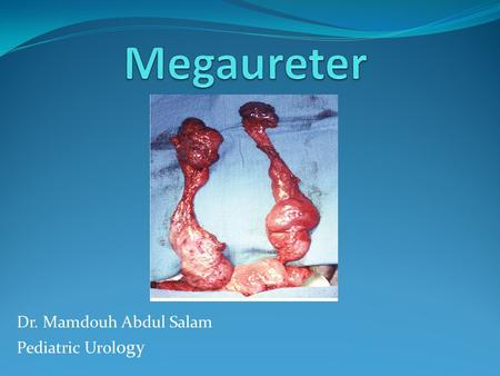 Dr. Mamdouh Abdul Salam Pediatric Urology