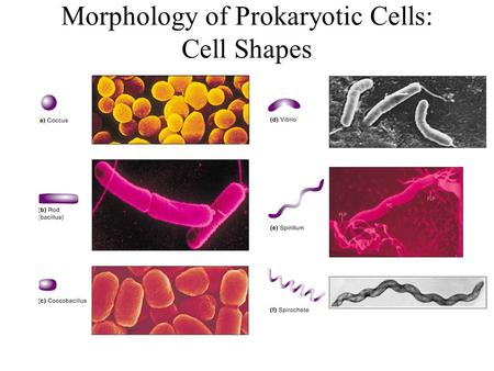 Morphology of Prokaryotic Cells: Cell Shapes. Morphology of Prokaryotic Cells: terminology in practice Curved rods: –Campylobacter species –Vibrio species.