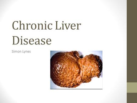 Chronic Liver Disease Simon Lynes. Definition Progressive destruction and regeneration of the liver parenchyma leading to fibrosis and cirrhosis.