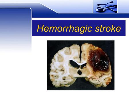 Hemorrhagic stroke. Alternative names brain bleeding brain hemorrhage stroke – hemorrhagic hemorrhagic cerebrovascular disease.