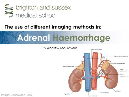 Adrenal Haemorrhage By Andrew McGovern Image: Underwood (2006) The use of different imaging methods in: