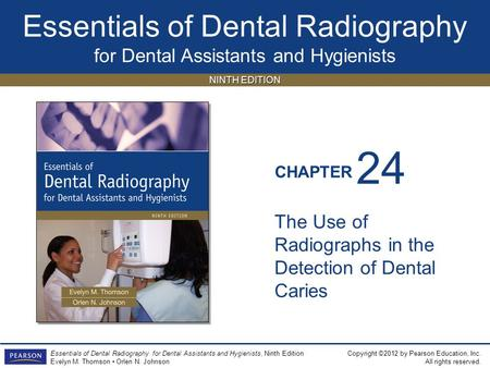 24 The Use of Radiographs in the Detection of Dental Caries.