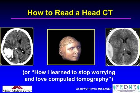 "(or ""How I learned to stop worrying and love computed tomography"")"