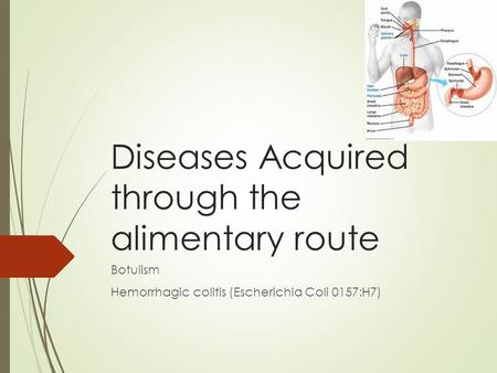 Diseases Acquired through the alimentary route Botulism Hemorrhagic colitis (Escherichia Coli 0157:H7)