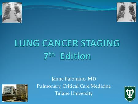 Jaime Palomino, MD Pulmonary, Critical Care Medicine Tulane University.