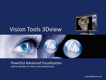 Www.millensys.com Vision Tools 3Dview Powerful Advanced Visualization Add-On Module for Vision Tools Workstations.