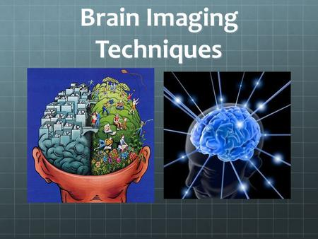 Brain Imaging Techniques. Figure 2.1 A wrongheaded theory Myers: Psychology, Eighth Edition Copyright © 2007 by Worth Publishers Phrenology.