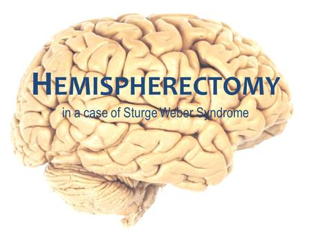 H EMISPHERECTOMY in a case of Sturge Weber Syndrome.