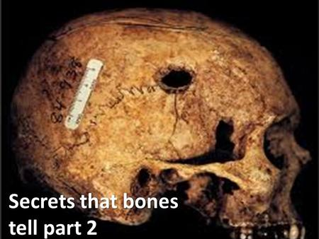 Secrets that bones tell part 2. Determining Age from Bones How did researchers determine the age of 'the crossbones girl'? What other ways do our bones.