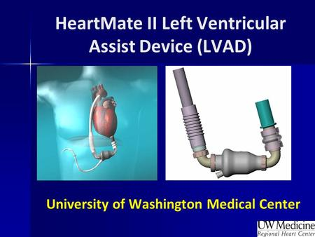 BACKGROUND Ventricular assist devices (VADs) are a proven therapy as bridge-to-cardiac transplantation in Class IIIB and Class IV heart failure patients.