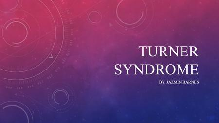 TURNER sYNDROME By: Jazmin Barnes.
