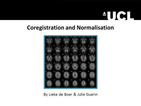 Coregistration and Normalisation By Lieke de Boer & Julie Guerin.