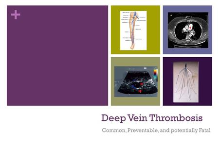 + Deep Vein Thrombosis Common, Preventable, and potentially Fatal.