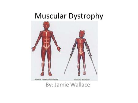 Muscular Dystrophy By: Jamie Wallace.