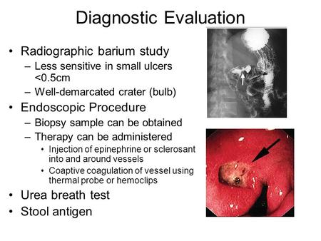 Diagnostic Evaluation Radiographic barium study –Less sensitive in small ulcers