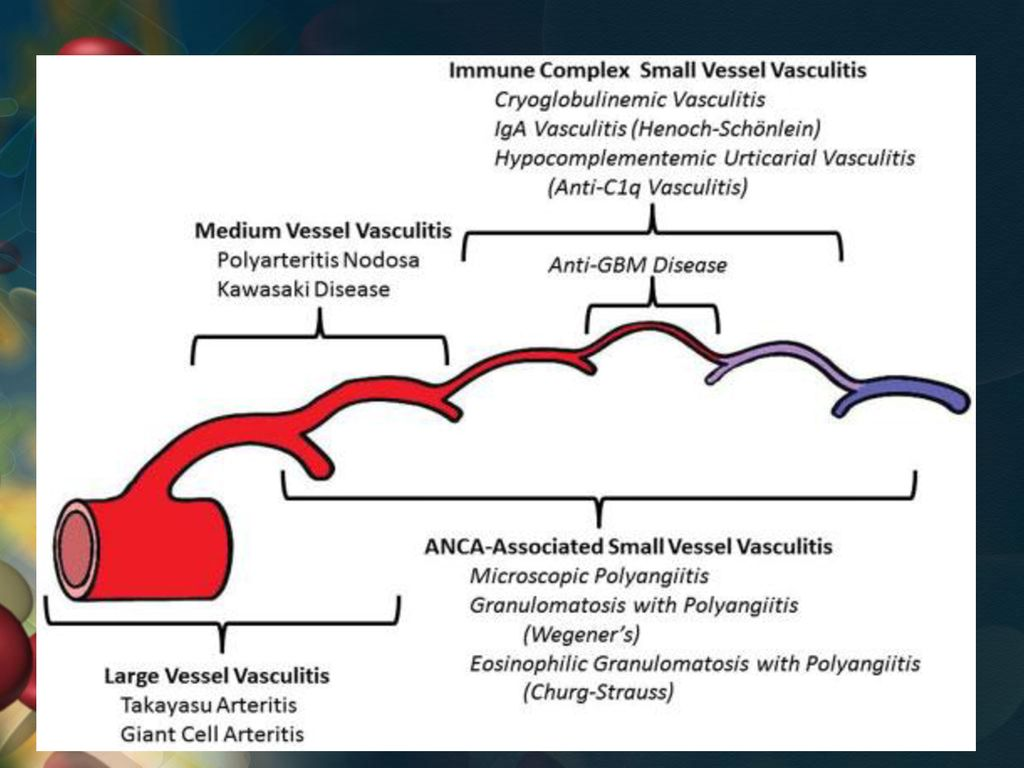 afectarea articulară în boala Takayasu testele reumatice sunt negative și rănesc articulațiile