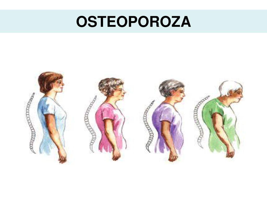 ce înseamnă durerea de cot articulație lângă picior doare