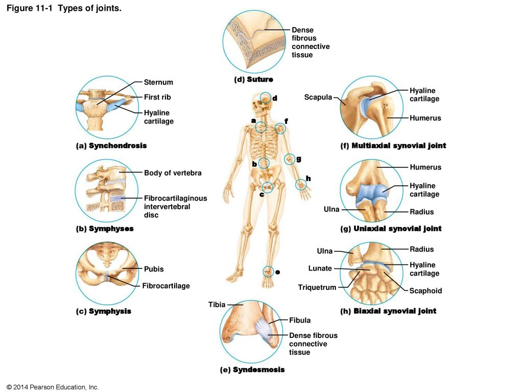 Figure 11 1 Types Of Joints Ppt Download These are typically joints these joints are immovable (synarthrosis). figure 11 1 types of joints ppt download