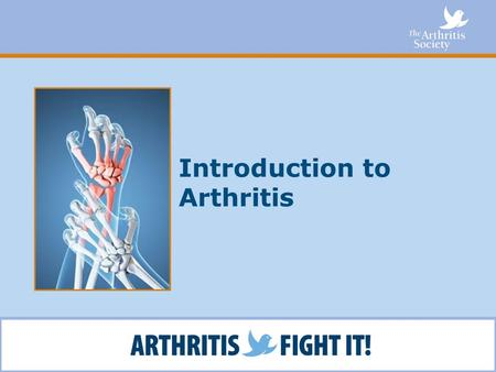 Introduction to Arthritis. What You Will Learn Facts about arthritis What you can do about arthritis How The Arthritis Society can help How you can get.