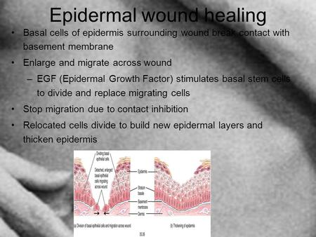 Epidermal wound healing Basal cells of epidermis surrounding wound break contact with basement membrane Enlarge and migrate across wound –EGF (Epidermal.