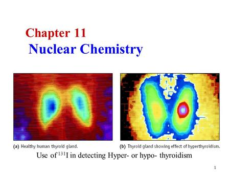 1 Chapter 11 Nuclear Chemistry Use of 131 I in detecting Hyper- or hypo- thyroidism.