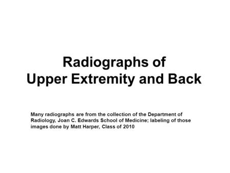 Radiographs of Upper Extremity and Back Many radiographs are from the collection of the Department of Radiology, Joan C. Edwards School of Medicine; labeling.